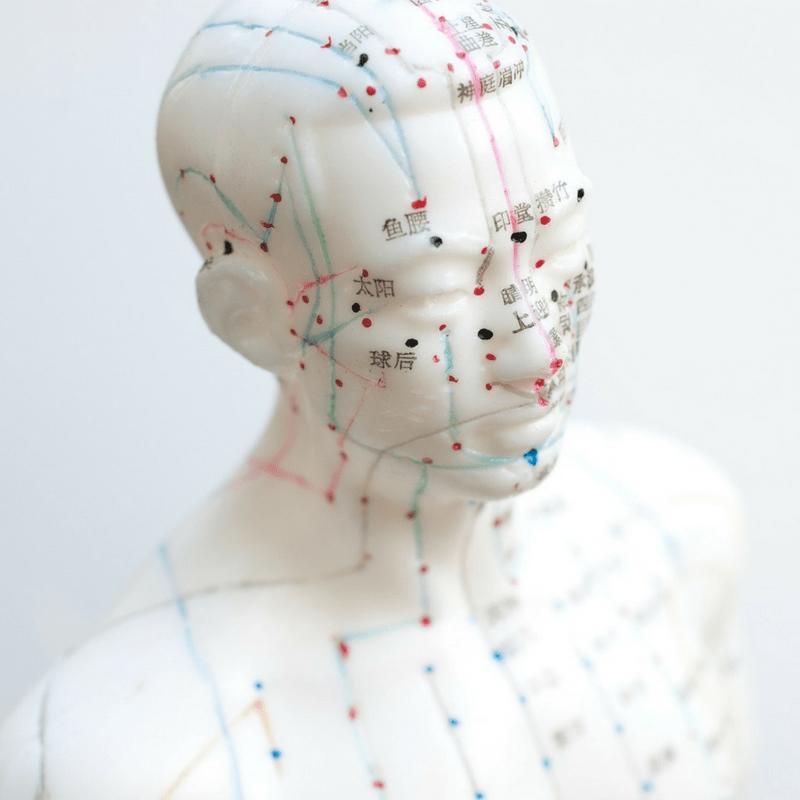 Craniopuntura: técnica de agulhas na cabeça para tratamento de dores agudas